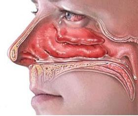Как лечить воспалительный процесс в носоглотке